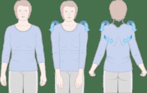 Shoulder Rolls